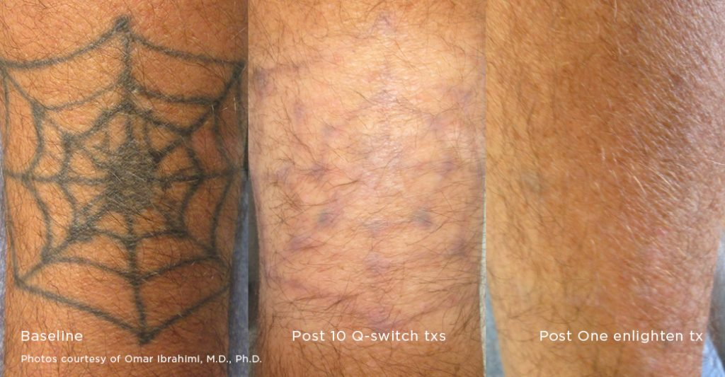 Tattoo removal pigment correction enlighten laser for Tattoo removal lasers