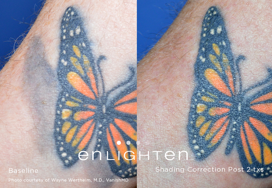Tattoo Removal / Pigment Correction - Enlighten Laser - Advanced